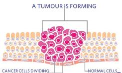 non cancerous tumors